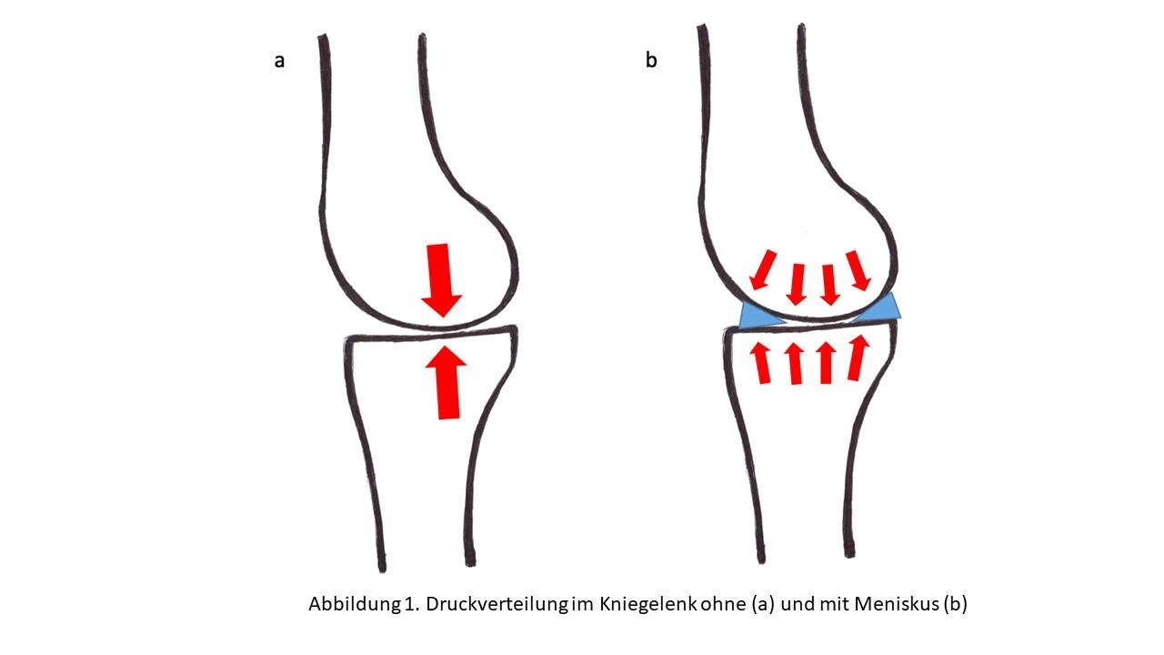 Meniskus Verletzungen